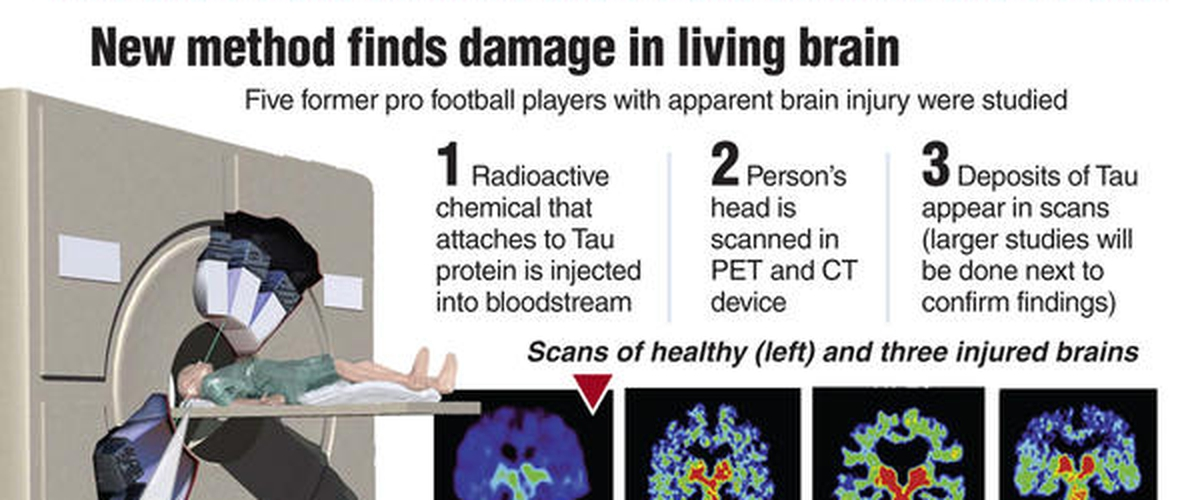 Progress on Diagnosing CTE in the Living - and how you can help!