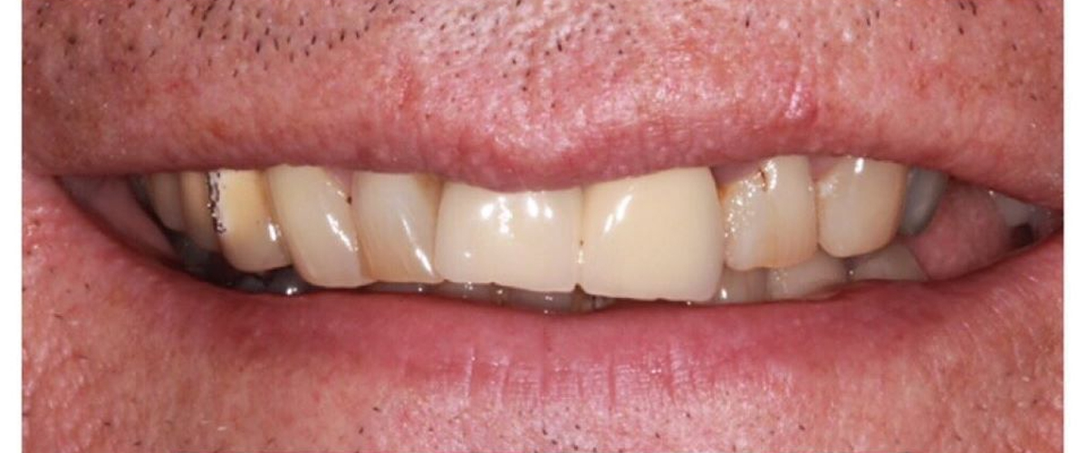 The Various Benefits And Importance Of Dental Implants Leicester